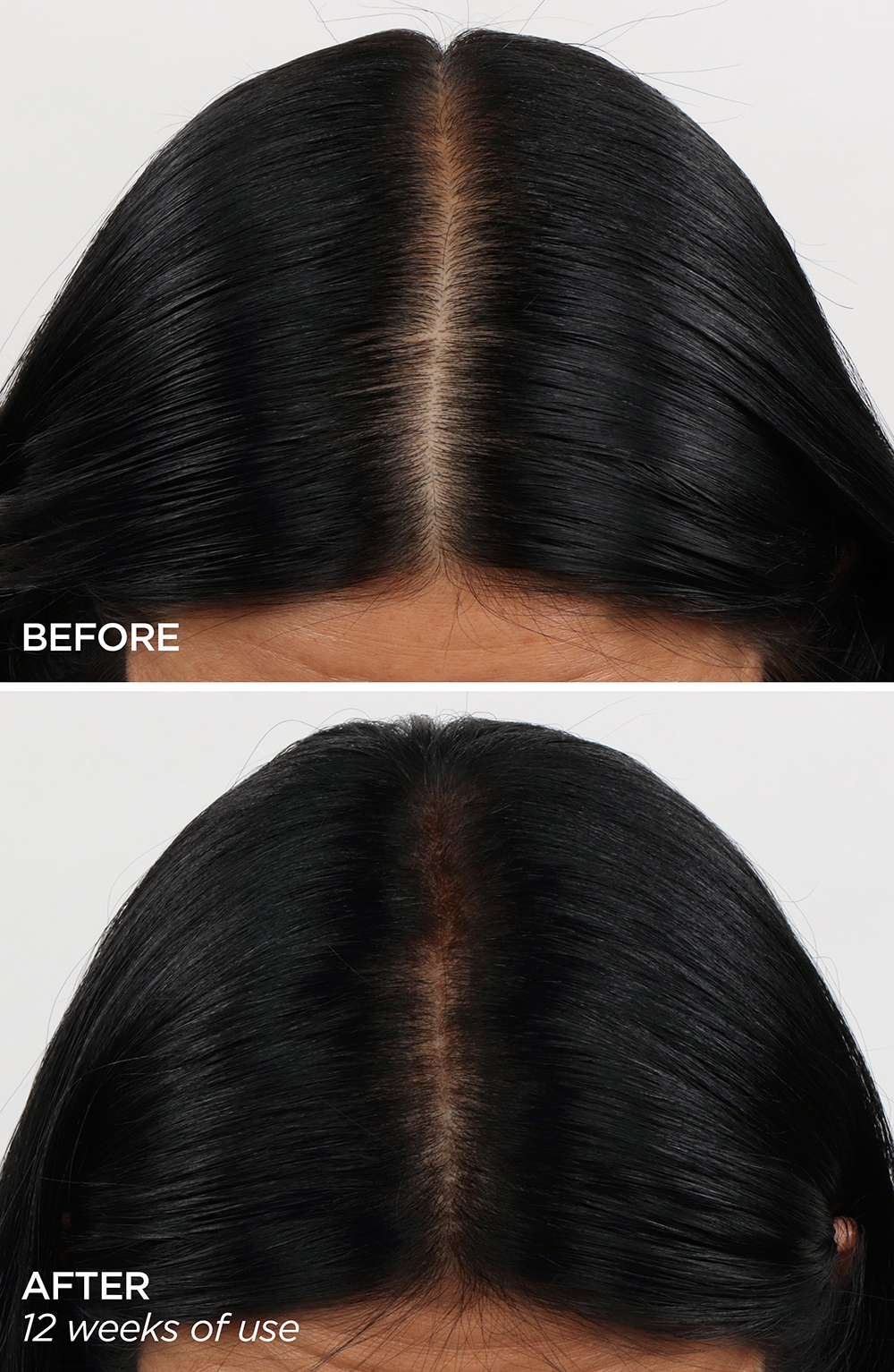 BeautyBio Healthy Scalp Serum before and after