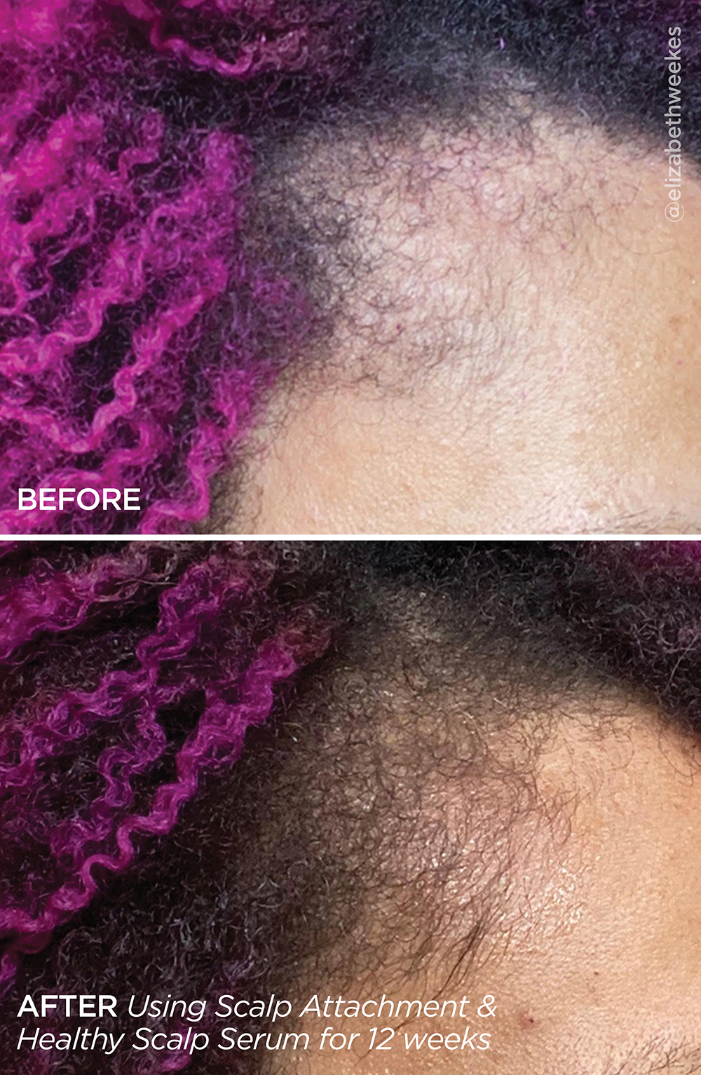 Healthy Scalp Serum before and after