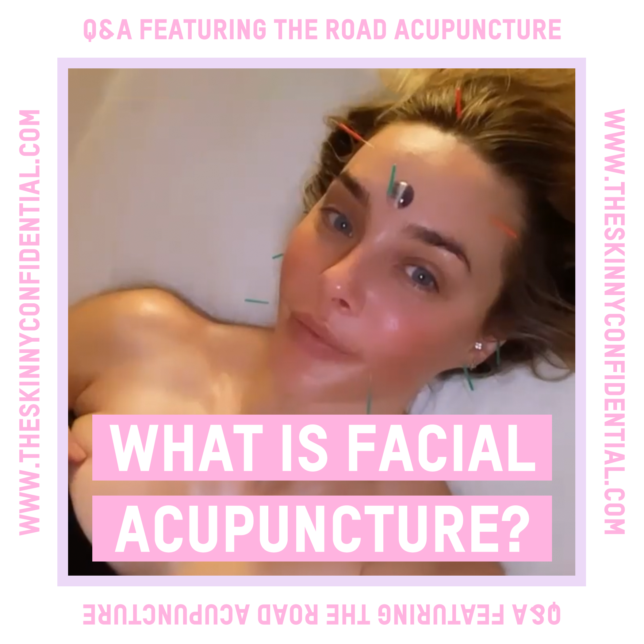 What Is Facial Acupuncture